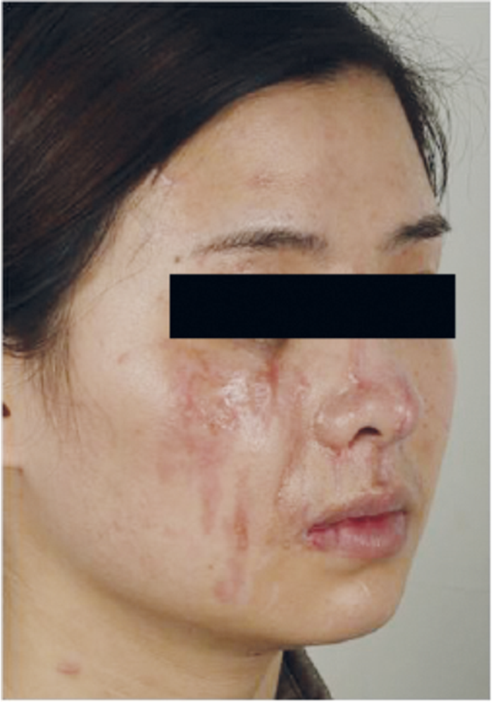 What S New In Treating Hypertrophic Scars And Keloids The Pmfa Journal