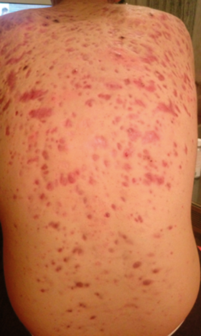 How I Do It Approaches To Acne Treatment Nd Yag Laser The Pmfa Journal