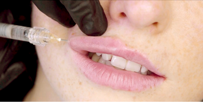 HOW I DO IT Approaches to lip augmentation: Perioral rejuvenation – a  multi-product approach | The PMFA Journal