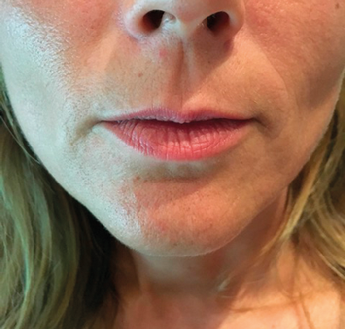 HOW I DO IT Approaches to lip augmentation: more than just