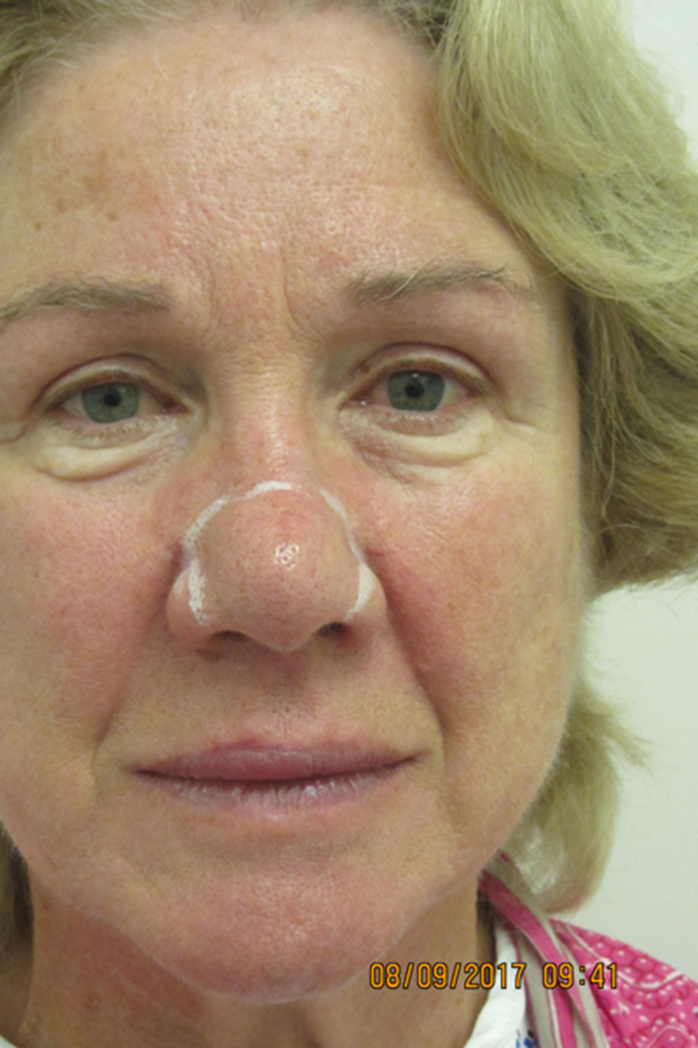 A Suggested Management Pathway For Rhinophyma And Benign Superficial Skin Lesions That Includes The Use Of Plasma The Pmfa Journal