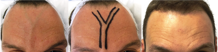 Facial veins – diagnosis and treatment options | The PMFA