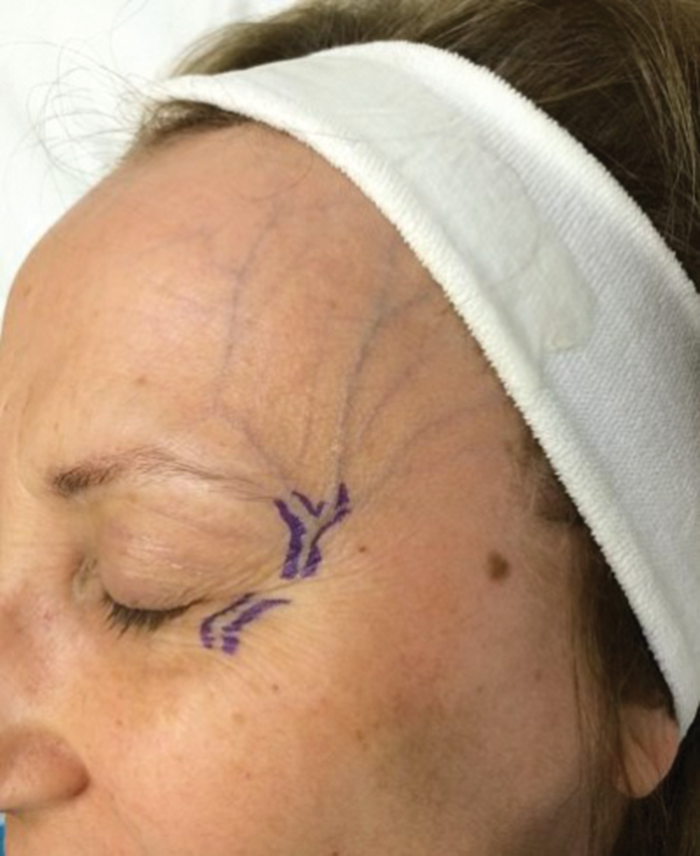 Facial veins – diagnosis and treatment options | The PMFA Journal