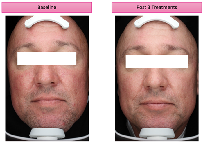 Treatment Of Rosacea Using Pulsed Dye Laser The Pmfa Journal