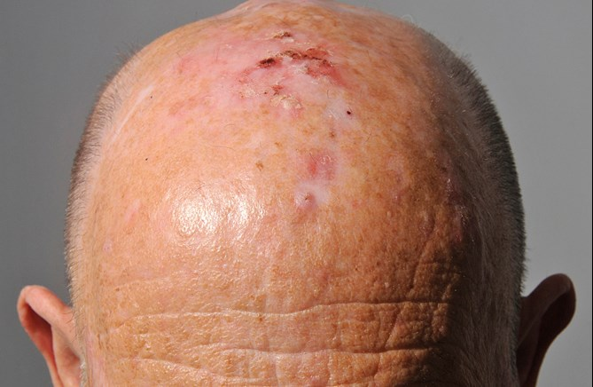 Non Surgical Management Of Actinic Keratosis Bowen S Disease And Non Melanoma Skin Cancer The Pmfa Journal