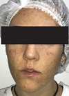 How I Do It - Acne before treatment