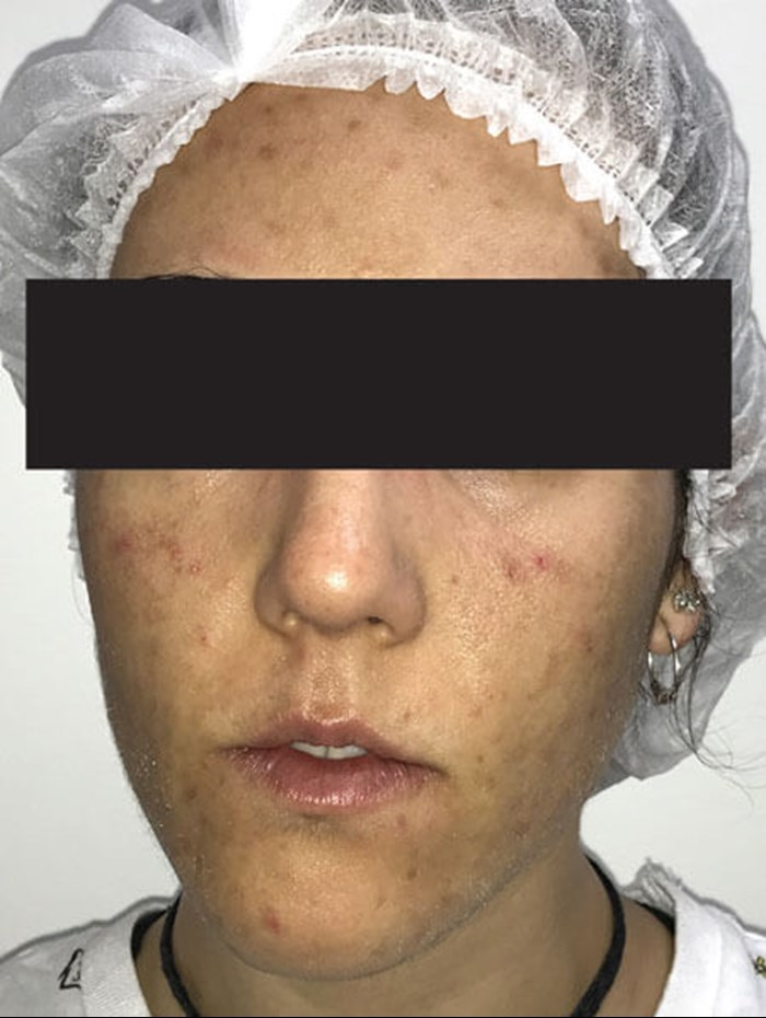 How I Do It Combination Treatment Of Acne Vulgaris The Pmfa Journal