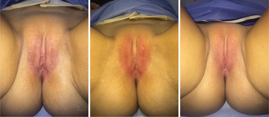 Vaginal Rejuvenation And Procedures Available For It