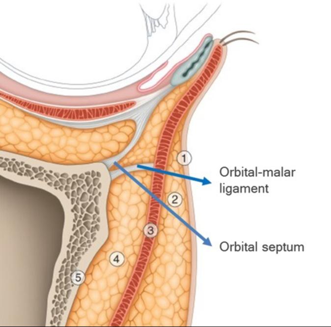 How I Do It Two Point Eye Lift Ha Dermal Fillers For Infraorbital