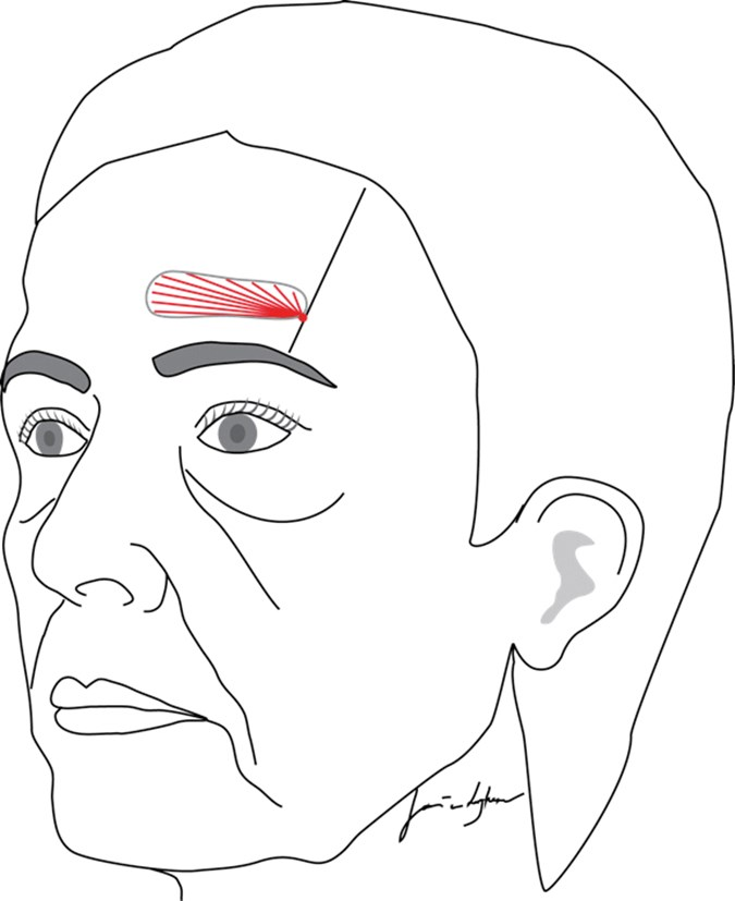Rejuvenation of the forehead: correction of the frontal
