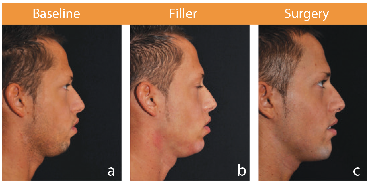 Chin augmentation: filler versus prosthesis | The PMFA Journal