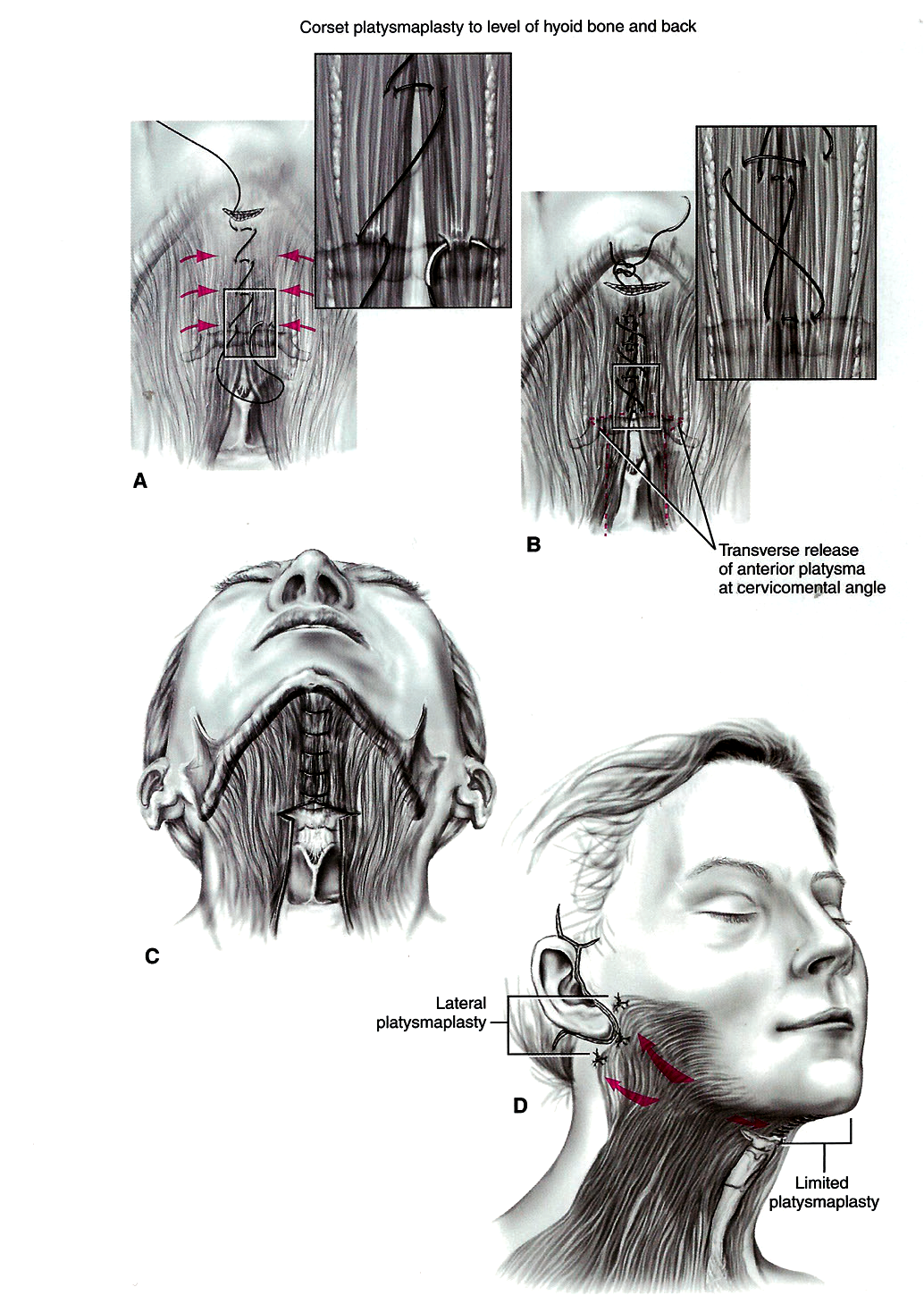 how i do it a guide to anterior neck lift aesthetic surgery | the pmfa  journal