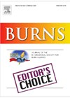 Burns journal front cover