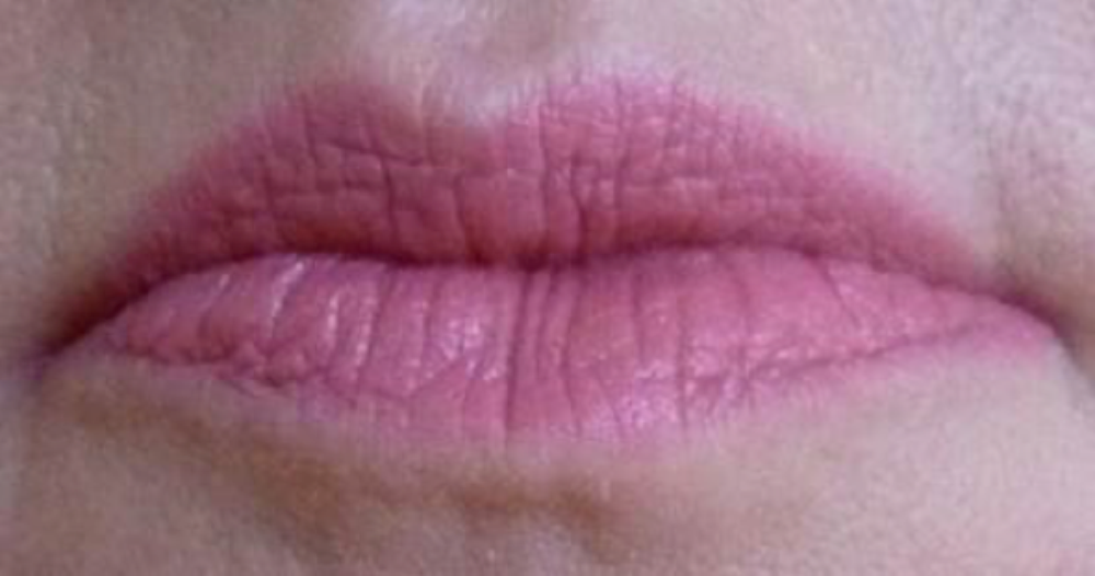Anatomy Of The Ageing Lip The Pmfa Journal