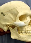 Photo of skull to highlight the optimal position of a malar implant