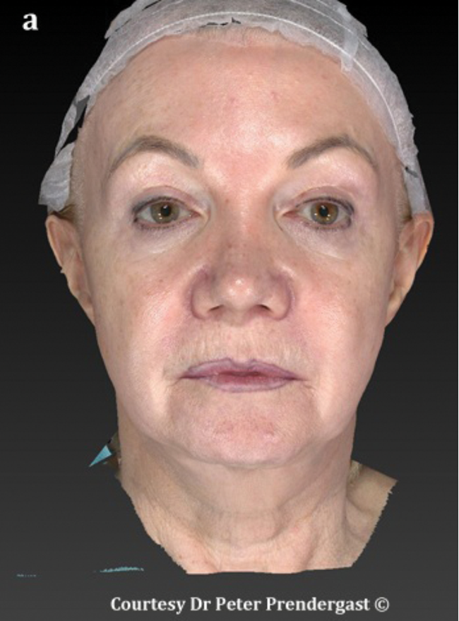 Facial contouring with fillers   The PMFA Journal