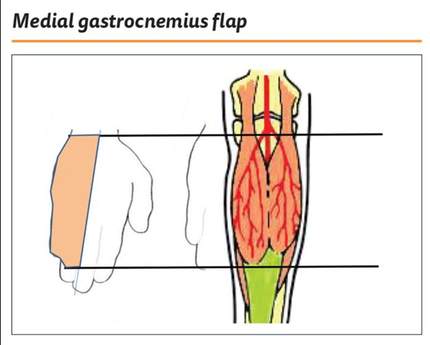 The Medial Gastrocnemius Flap The Pmfa Journal