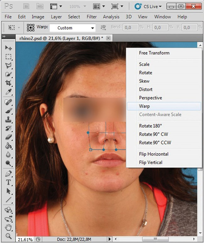 Photoshopping the face: simulated outcomes of orthofacial