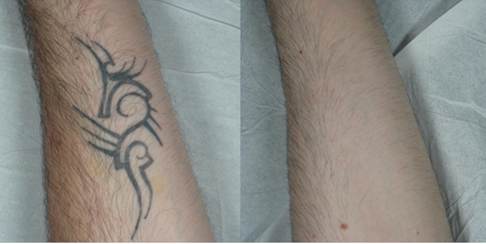 Laser tattoo removal: results and issues | The PMFA Journal