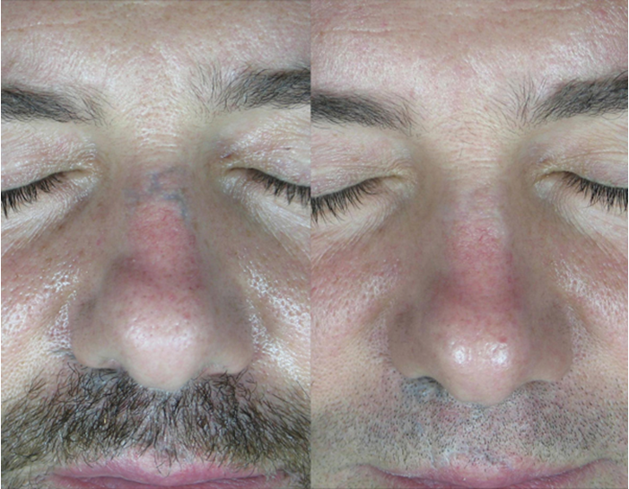 Laser Tattoo Removal Results And Issues The Pmfa Journal