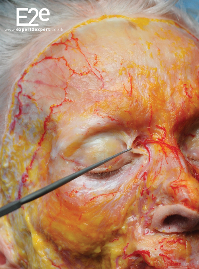 Filler Complications Is There A Way To Prevent Vascular Compromise