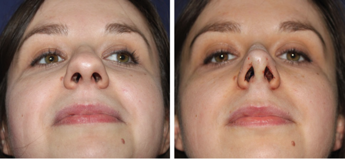 Images of Asymmetrical Nose After Rhinoplasty - #rock-cafe