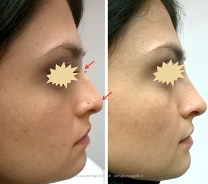 Rhinofiller Non Surgical Correction Of The Nose The Pmfa Journal